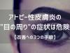"""アトピー性皮膚炎の""""目の周り""""の症状は危険"""
